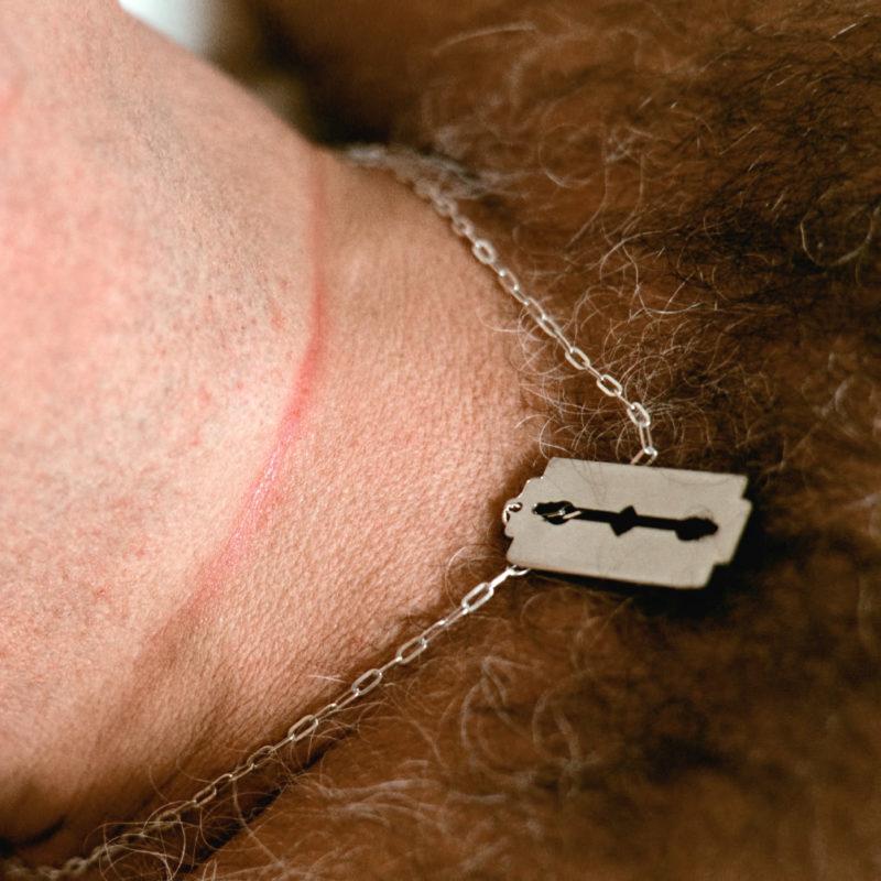 Reportagefotografie in der psychiatrischen Abteilung: Ein männlicher Patient liegt im Bett. Er trägt eine Kette mit einem Schmuckstück in Form einer Rasierklinge. An seinem Hals sind die Spuren eines Stricks sichtbar, mit dem er versuchte sich umzubringen.