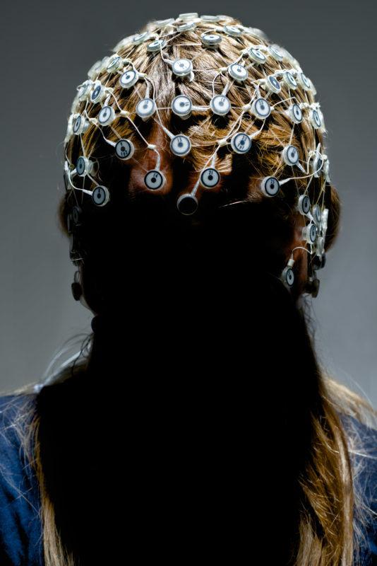 Studio photogaphy: A hood with electroencephalogram electrodes on a patient